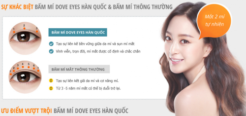 can-canh-ky-thuat-nhan-mi-mat-dove-eyes1